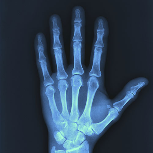x-ray services throughout San Diego - x ray of hand